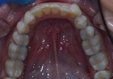 Amalgam Fillings Replacement