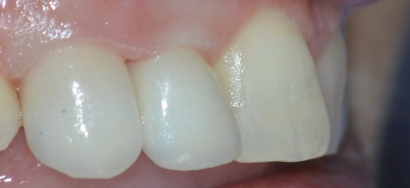 Ceramic Restorations-After