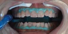 Teeth Whitening-Procedure