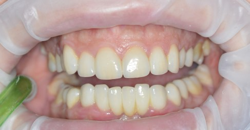 Porcelain Veneers-After