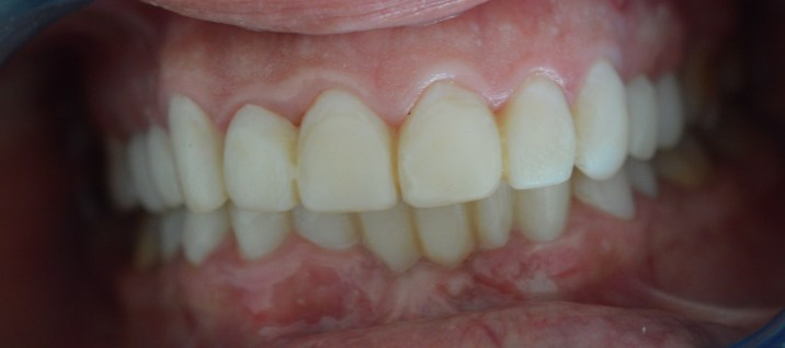 Porcelain Veneers-Before